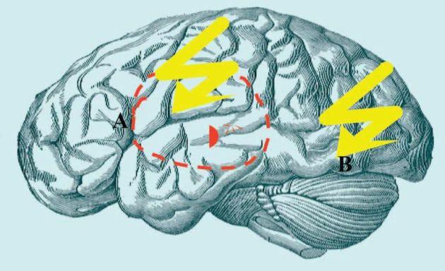 epilepsia tratata in romania cu electrozi lugojeanul 2013
